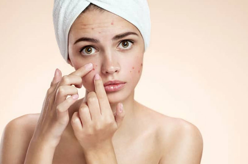 10 Things to Know About Taking Care of Acne