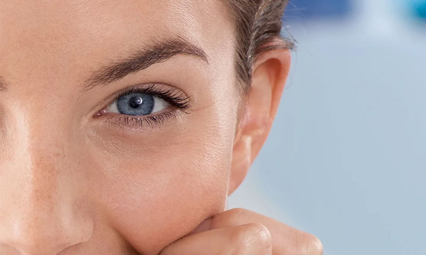 How to Prevent Wrinkles Under Eyes in Your 20s?
