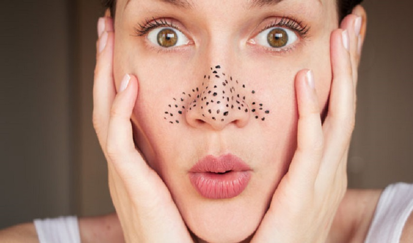 Better Looking Skin Is Easier Than Ever with This Blackhead Tool