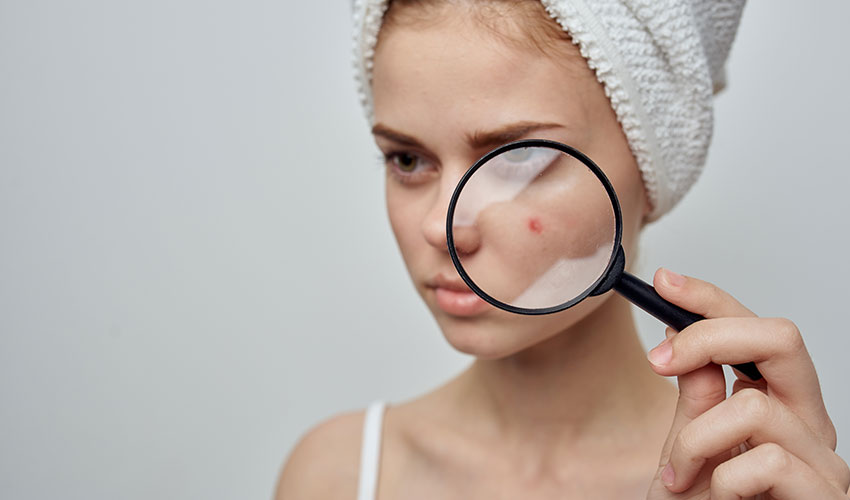 3 Ways To Conceal Red Spots On Your Face