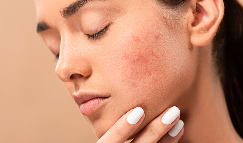3 Makeup Tips And Tricks To Cover Up Blemishes